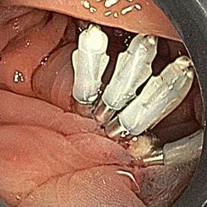 EMR (内視鏡的粘膜切除術)